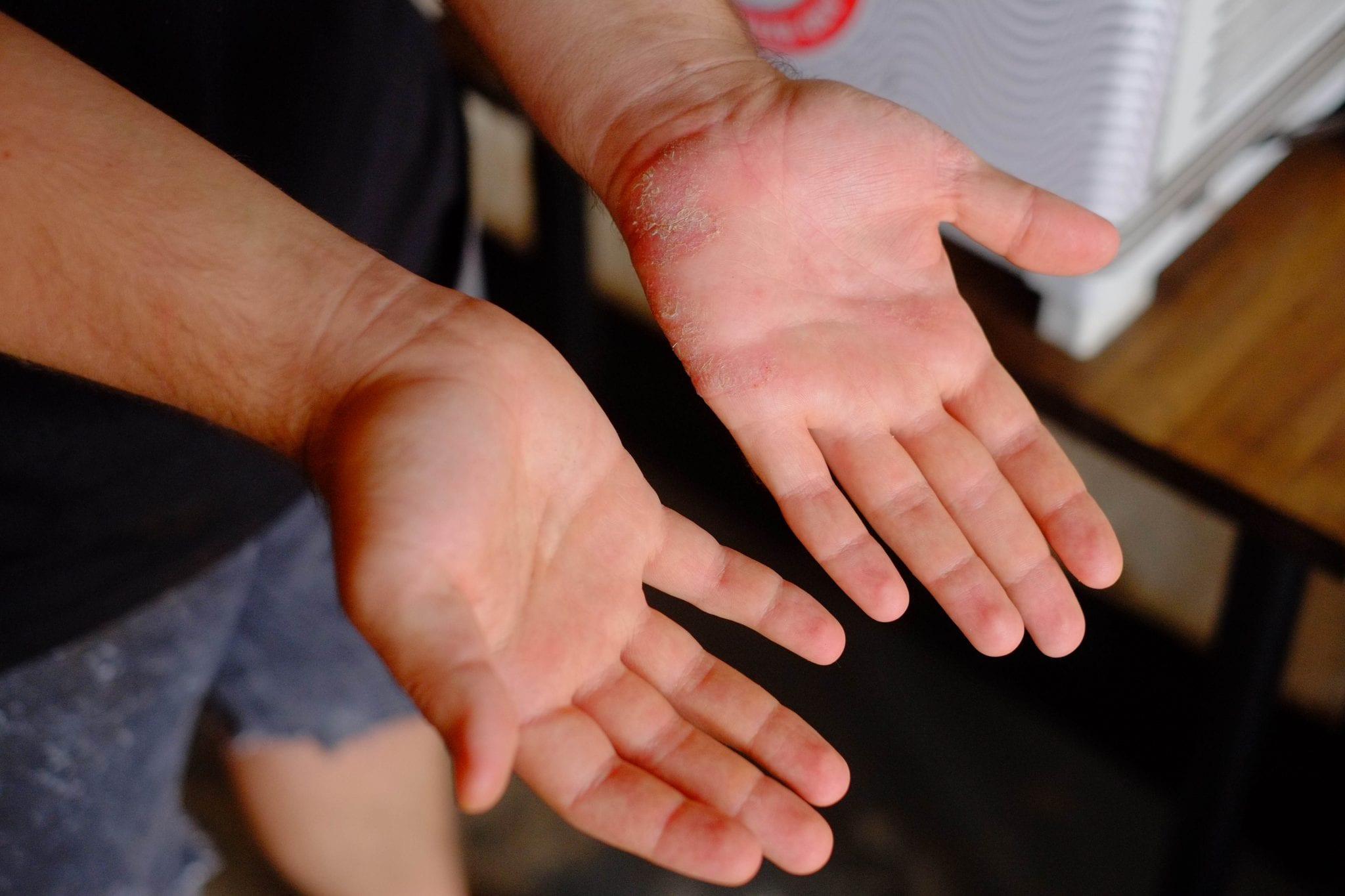 Dry hands